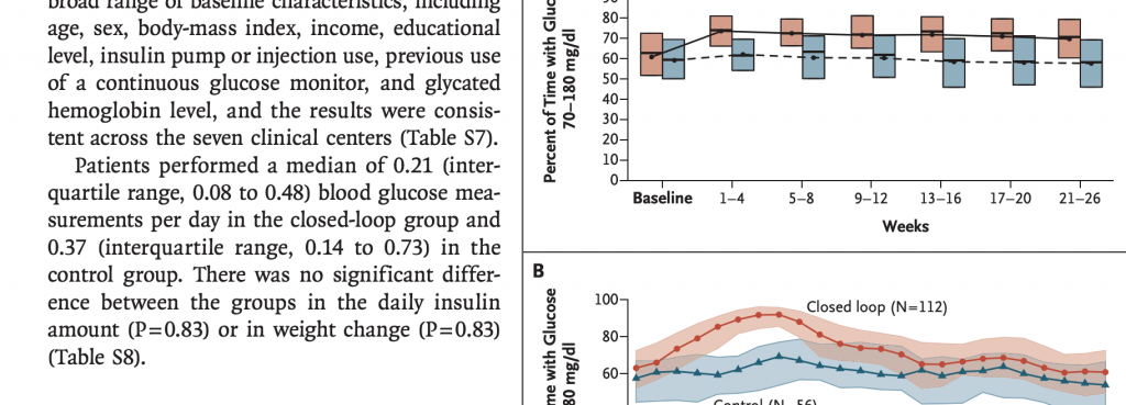 Insulin pump type 1 diabetes new study promising results