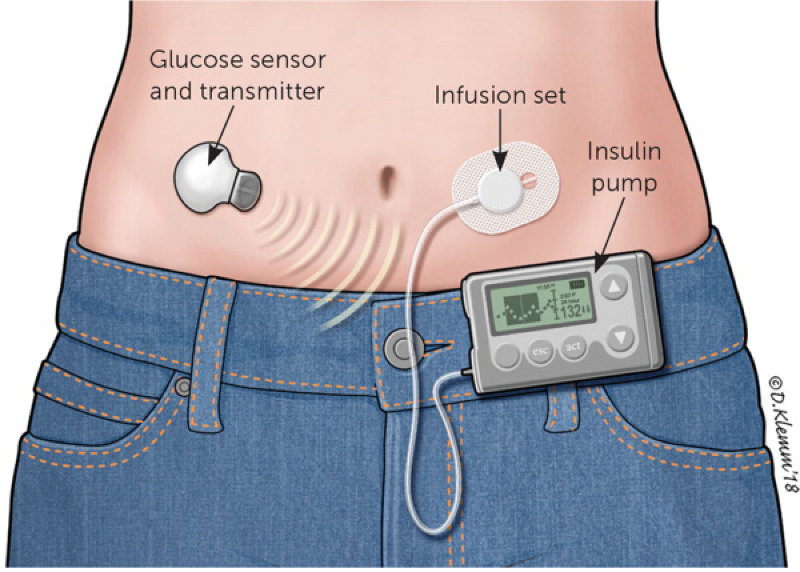Technology technical device aid for diabetes therapy management